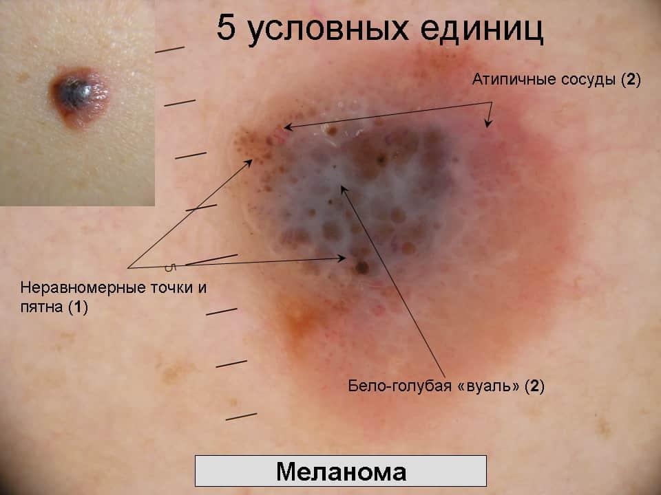 Нужно как проявляется меланома кожи ИМХО смысл