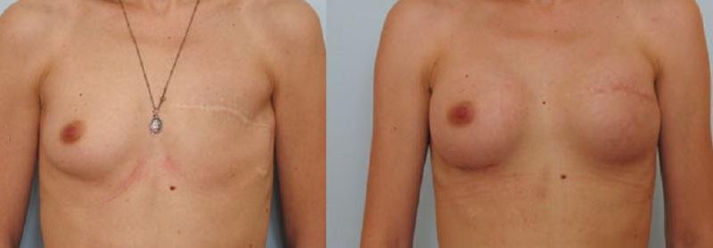 Как выглядит силиконовая грудь после проведенной операции Добавлю