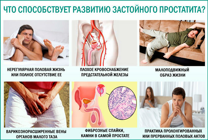 хронический конгестивный простатита