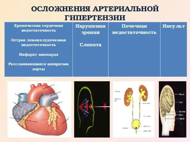 Почечная гипертония: симптомы, лечение и профилактика