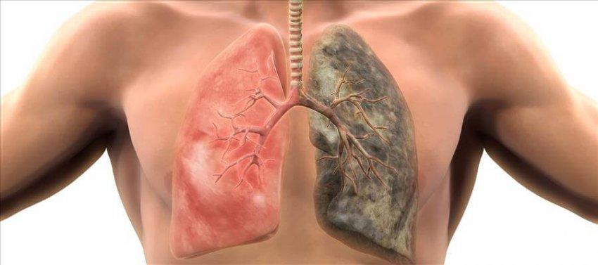 кашель, причины, возникновения, кашля, советы, практические, пациента, помогут, специальные, препараты, естественная